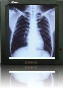 LED X ray light box / medical equipment