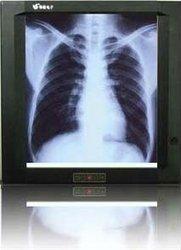LED X ray light box / medical equipment