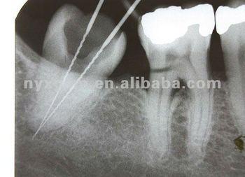 Waterproof Laser Double Side Dental X Ray Films Digital