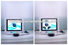 Manufacture High Intensity focused Ultrasound hifu DYM-U01
