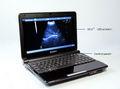 çin hafif tam dijital dizüstü ucuz taşınabilir ultrason