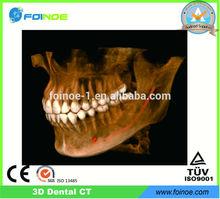3D Cone Beam ct scanner dental