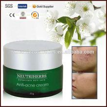 Hot sale!! herbal formula anti pimples beauty care green tea anti acne cream