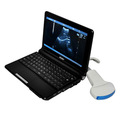 Chine échographe portable, imprimante, chers machine à ultrasons
