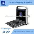 sonoscape s8exp 4d port&aac