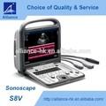 sonoscape s8v couleur portable machine à ultrasons à usage vétérinaire