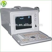 Laptop full Digital Ultrasound Scanner in Health& Medical