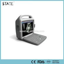 cheap hot sale digital laptop protable ultrasound scanner