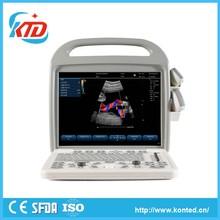 New Portable Ultrasound Scanner For Ob Measurement