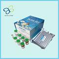 Humains cytokeratin haut poids moléculaire, Ck-hmw ELISA Kit