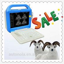 China Factory Laptop Ecografo Machine Price ATNL51353A LCD