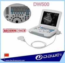 laptop imaging ultrasound scanner & sheep pregnancy ultrasound machine portable