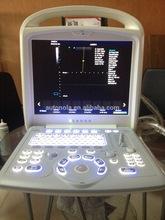 Colourful Portable China Portable Laptop Mini Medical Doppler Price of color doppler for Pregnancy