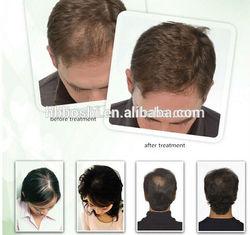 Wholesale China Import laser hair loss helmet