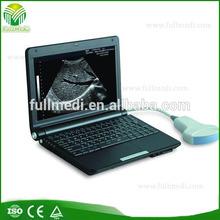 FM-3000D Full Digital Laptop Ultrasound Scanner for clinic