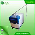 Laser nd yag rimozione del tatuaggio ruby+q- Interruttore