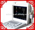 Doppler couleur échographie vétérinaire vétérinaires& Équipements( atnl/300)