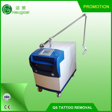 tattoo removal active q-switch laser