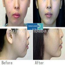 promotion 5pcs free shipping hot sale cross-linked hyaluronic acid dermal filler for nose up