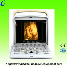 Ultrasound Portable Color Doppler Unit