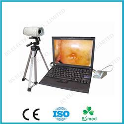BS0100 Digital Portable Endoscopy Colposcope/endoscopy equipment