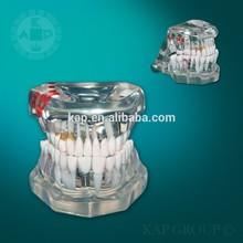 A06-013 Human anatomy teeth model plastic dental teeth model jaw