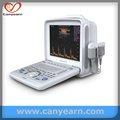 électrocardiographe machine ecg éco. doppler. mieux que échographie sonoace medison