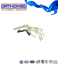 Orthopedic trauma implant,External Fixation,wrist support
