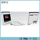 hot sale color doppler portable vascular ultrasound machine