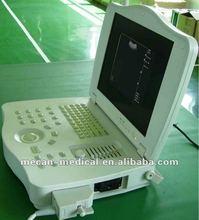MC-BU3000E1 15 inch Fully Digital Laptop Ultrasound Scanner with Convex Probe