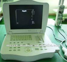 MC-BU3000E1 15 inch Laptop Ultrasound Medical Equipment