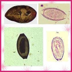 Parasite eggs w.m Phthirus pubis microscope glass slides