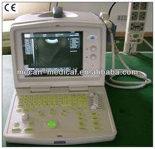 Ultrasound Portable Machine China