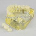 Estudio el modelo del diente caries dental y modelo de puente 2010-i