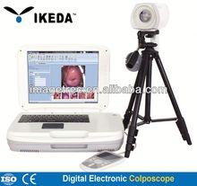 Digital electronic colposcope workstation