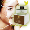 Visible effect within 3 days pimple removal ance remove anti-acne cream