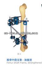fémur ortopédicos fortalecido la fijación externa