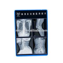 Meiqing x ray machine manufacturers