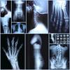 digital x ray film china manufacturer, dental panoramic x ray film