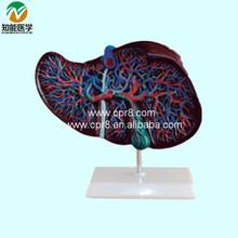 Liver anatomical model BIX-A1048