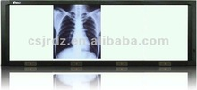X-ray Film viewer with high quality