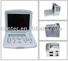 Portable Convex Ultrasound Machine---CE certified