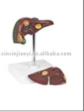 Patológica modelo de el hígado