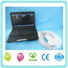 Laptop Full Digital laptop Ultrasound scanner