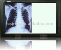 special medical LED x ray film viewer