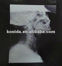 Kodak/ Agfa / Fuji x rau films