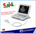 Obstétrica, ultrasonido ginecologicos& instrumento de ultrasonido