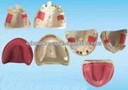 SE31275 Implant Practice Model