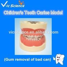 Children Teeth Caries Model