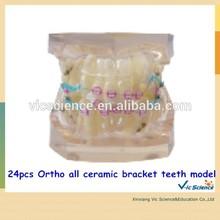 B8-03 Model 24pcs Ortho all ceramic bracket teeth model